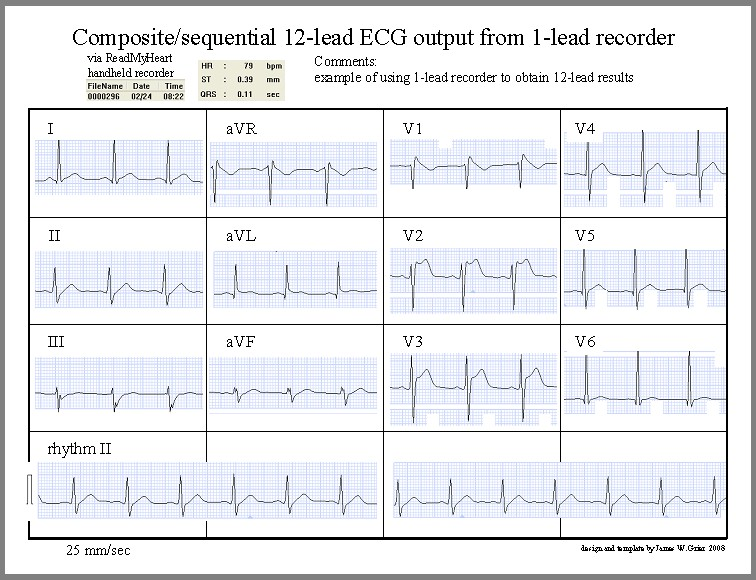 1-lead to 12-lead and exercise ecg, Powerpoint templates