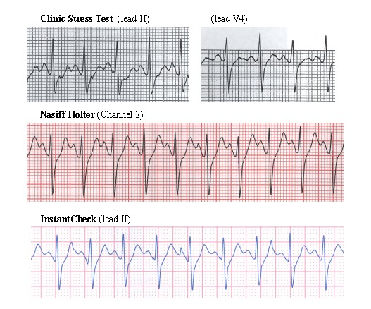 1-lead to 12-lead and exercise ECG