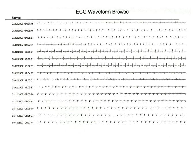 Comparison of handheld 1-lead ECG/EKG recorders