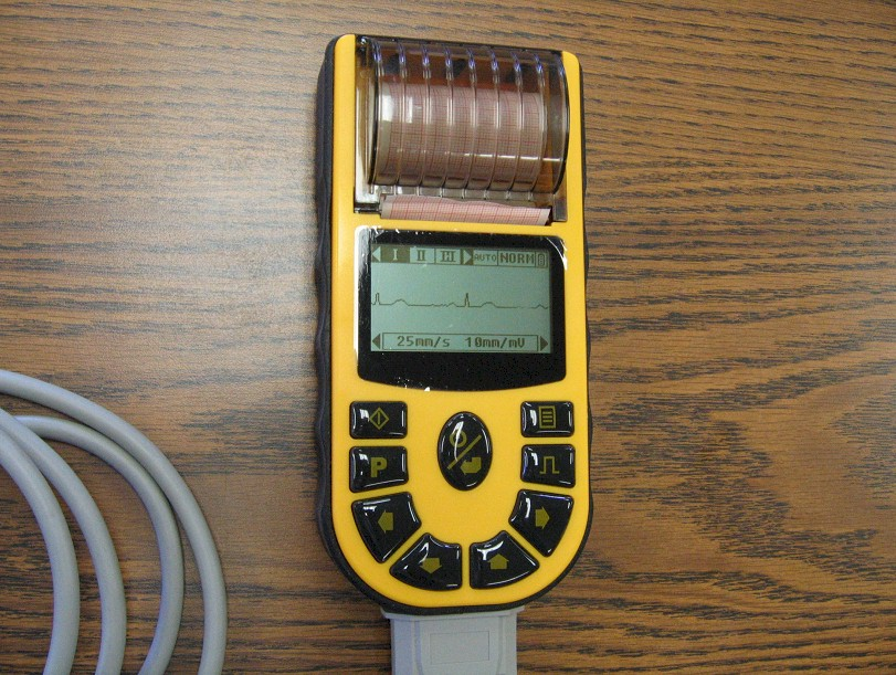 comparative-handheld-ECG80A-2.jpg (179526 bytes)