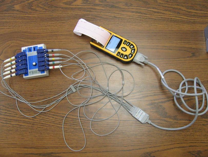 comparative-handheld-ECG80A-3.jpg (169340 bytes)