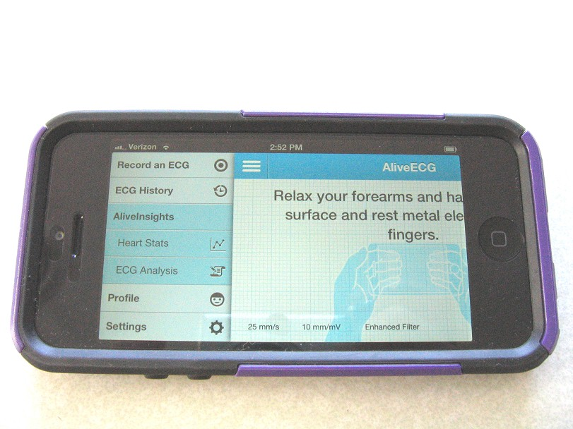 comparative-handheld-alivecor-3.jpg (114703 bytes)