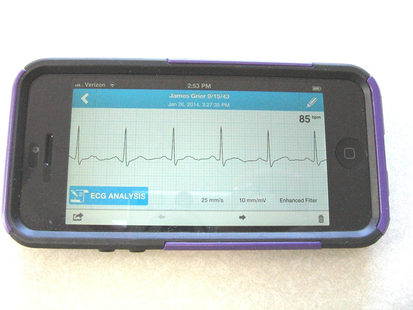 comparative-handheld-alivecor-4.jpg (113403 bytes)