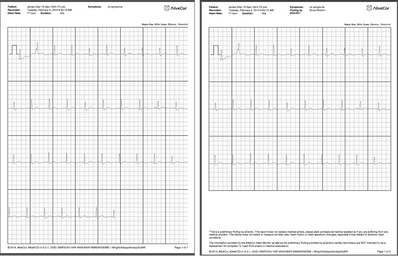 comparative-handheld-alivecor-7.jpg (134754 bytes)