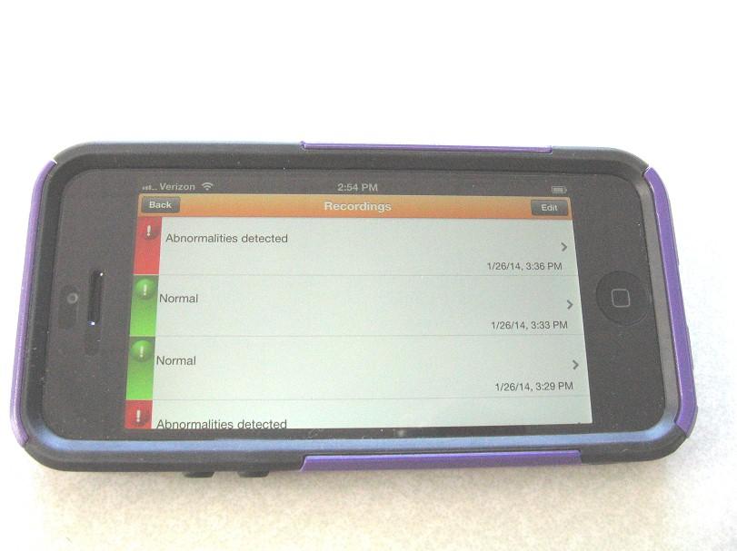 comparative-handheld-ecgcheck-4.jpg (95696 bytes)