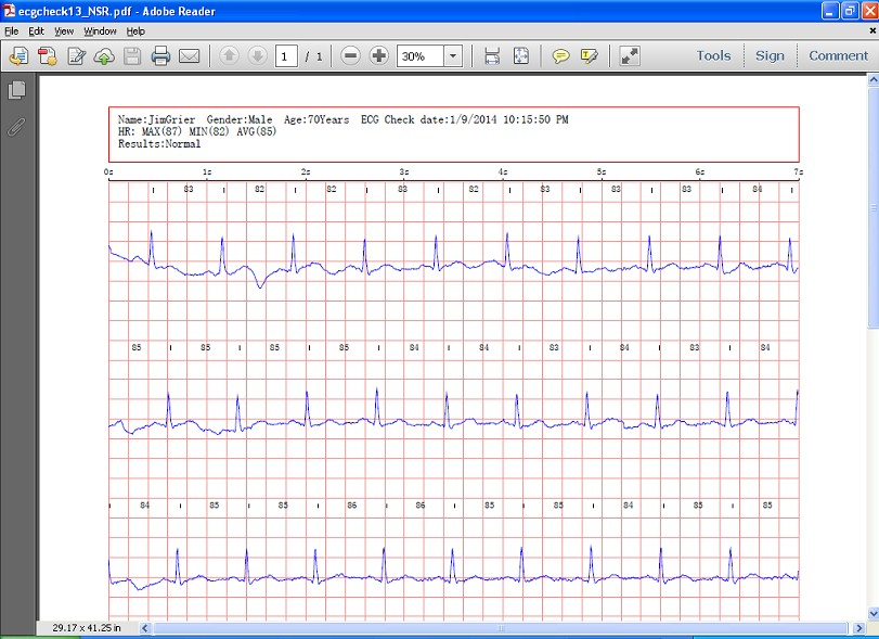 comparative-handheld-ecgcheck-8.jpg (137281 bytes)