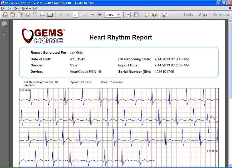 comparative-handheld-heartcheckpen-7.jpg (151946 bytes)