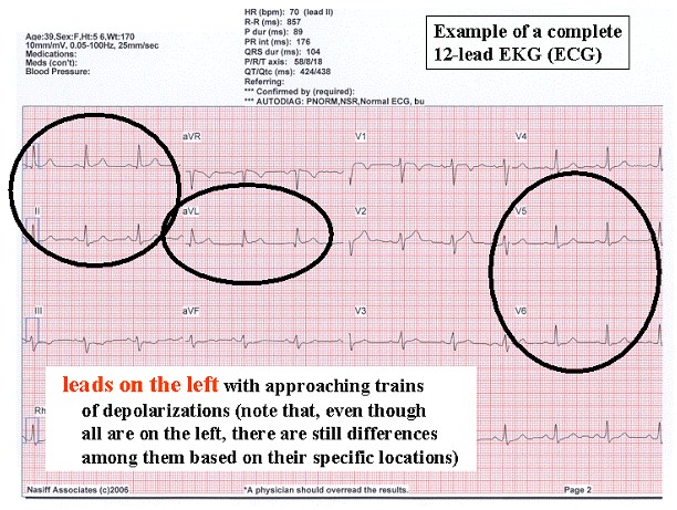 exercise physiology ecg lab Download and open the lab instruction worksheet  (and on an ecg tracing)  learn about cardiovascular physiology by completing the following lab simulation.