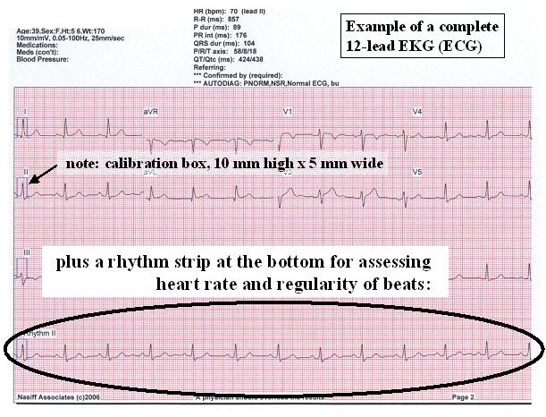 eHeart: Introduction to ECG EKG